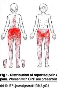 Pelvic Floor referral pattern